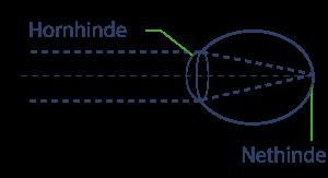 Hornhinde