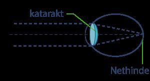 katarakt